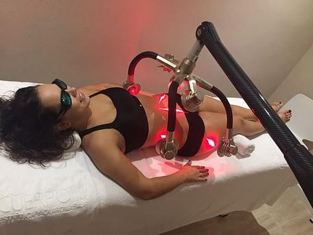 laser-zerona-cuerpo13-6